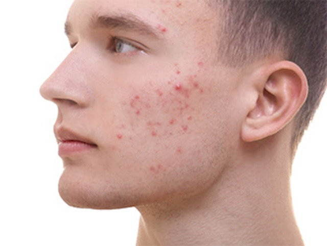 man_acne_1